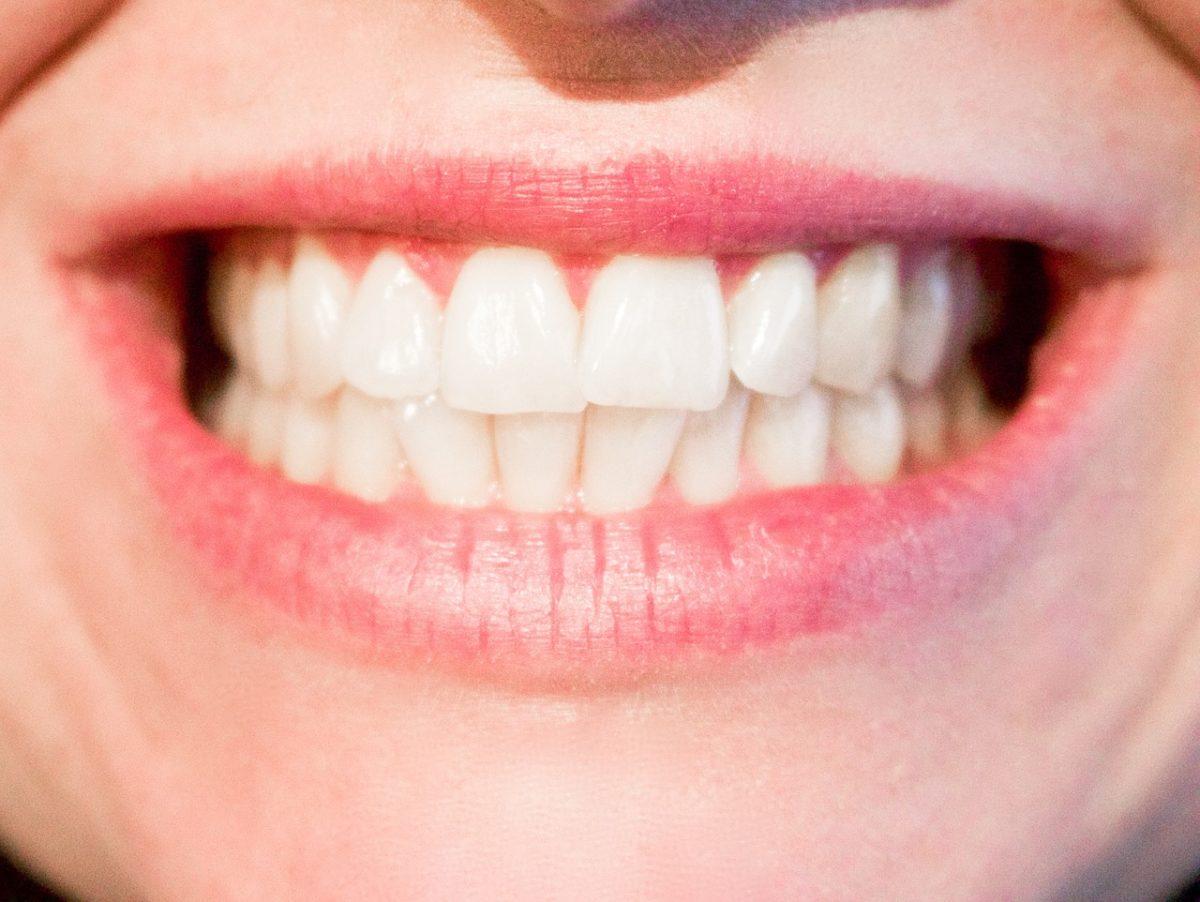 Obecna technologia wykorzystywana w salonach stomatologii estetycznej zdoła sprawić, że odbierzemy śliczny uśmieszek.